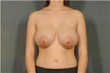 Breast Reduction Before Photo by Ellen Janetzke, MD; Bloomfield Hills, MI - Case 30466