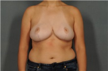 Breast Reduction After Photo by Ellen Janetzke, MD; Bloomfield Hills, MI - Case 30467