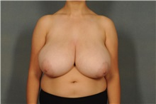 Breast Reduction Before Photo by Ellen Janetzke, MD; Bloomfield Hills, MI - Case 30467