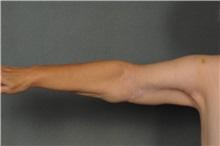 Arm Lift After Photo by Ellen Janetzke, MD; Bloomfield Hills, MI - Case 30468