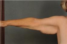 Arm Lift Before Photo by Ellen Janetzke, MD; Bloomfield Hills, MI - Case 30468