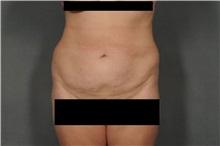 Liposuction After Photo by Ellen Janetzke, MD; Bloomfield Hills, MI - Case 30469