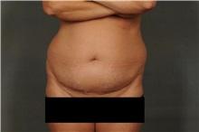 Liposuction Before Photo by Ellen Janetzke, MD; Bloomfield Hills, MI - Case 30469