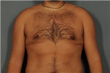 Male Breast Reduction After Photo by Ellen Janetzke, MD; Bloomfield Hills, MI - Case 30590