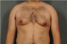 Male Breast Reduction Before Photo by Ellen Janetzke, MD; Bloomfield Hills, MI - Case 30590