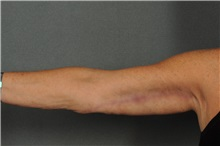 Arm Lift After Photo by Ellen Janetzke, MD; Bloomfield Hills, MI - Case 30788