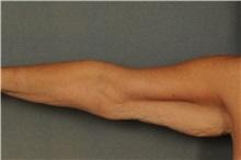 Arm Lift Before Photo by Ellen Janetzke, MD; Bloomfield Hills, MI - Case 30788