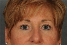 Eyelid Surgery After Photo by Ellen Janetzke, MD; Bloomfield Hills, MI - Case 30789