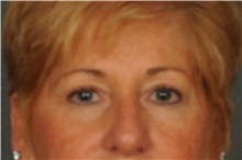 Eyelid Surgery Before Photo by Ellen Janetzke, MD; Bloomfield Hills, MI - Case 30789