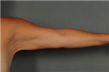 Arm Lift After Photo by Ellen Janetzke, MD; Bloomfield Hills, MI - Case 30790