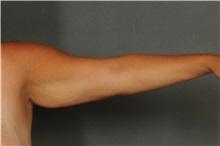 Arm Lift Before Photo by Ellen Janetzke, MD; Bloomfield Hills, MI - Case 30790