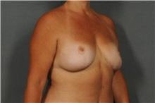 Breast Reduction After Photo by Ellen Janetzke, MD; Bloomfield Hills, MI - Case 30792