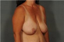 Breast Reduction Before Photo by Ellen Janetzke, MD; Bloomfield Hills, MI - Case 30792