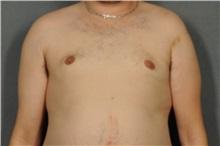Male Breast Reduction After Photo by Ellen Janetzke, MD; Bloomfield Hills, MI - Case 30793