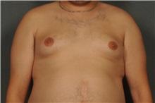Male Breast Reduction Before Photo by Ellen Janetzke, MD; Bloomfield Hills, MI - Case 30793