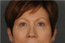 Eyelid Surgery After Photo by Ellen Janetzke, MD; Bloomfield Hills, MI - Case 30795