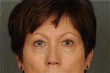 Eyelid Surgery Before Photo by Ellen Janetzke, MD; Bloomfield Hills, MI - Case 30795