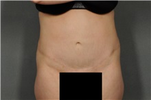 Tummy Tuck After Photo by Ellen Janetzke, MD; Bloomfield Hills, MI - Case 30896