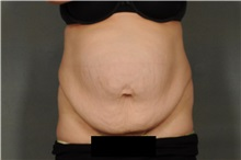 Tummy Tuck Before Photo by Ellen Janetzke, MD; Bloomfield Hills, MI - Case 30896