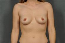 Breast Lift After Photo by Ellen Janetzke, MD; Bloomfield Hills, MI - Case 31435
