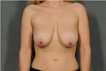Breast Lift Before Photo by Ellen Janetzke, MD; Bloomfield Hills, MI - Case 31435