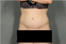 Tummy Tuck After Photo by Ellen Janetzke, MD; Bloomfield Hills, MI - Case 32603