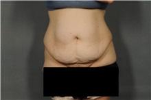 Tummy Tuck Before Photo by Ellen Janetzke, MD; Bloomfield Hills, MI - Case 32603