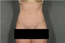 Tummy Tuck After Photo by Ellen Janetzke, MD; Bloomfield Hills, MI - Case 32604