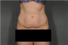 Tummy Tuck Before Photo by Ellen Janetzke, MD; Bloomfield Hills, MI - Case 32604