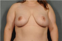 Breast Reduction After Photo by Ellen Janetzke, MD; Bloomfield Hills, MI - Case 33141