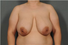 Breast Reduction Before Photo by Ellen Janetzke, MD; Bloomfield Hills, MI - Case 33141