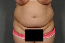 Tummy Tuck Before Photo by Ellen Janetzke, MD; Bloomfield Hills, MI - Case 33142