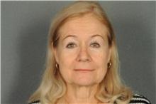 Eyelid Surgery After Photo by Ellen Janetzke, MD; Bloomfield Hills, MI - Case 33143