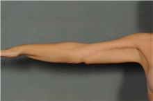 Arm Lift After Photo by Ellen Janetzke, MD; Bloomfield Hills, MI - Case 33364