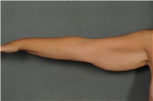 Arm Lift Before Photo by Ellen Janetzke, MD; Bloomfield Hills, MI - Case 33364