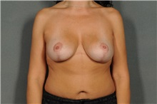 Breast Lift After Photo by Ellen Janetzke, MD; Bloomfield Hills, MI - Case 33365