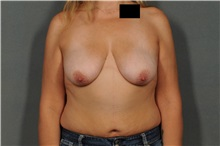 Breast Lift Before Photo by Ellen Janetzke, MD; Bloomfield Hills, MI - Case 33365