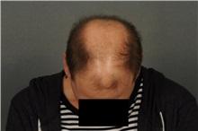 Hair Transplant Before Photo by Ellen Janetzke, MD; Bloomfield Hills, MI - Case 33899