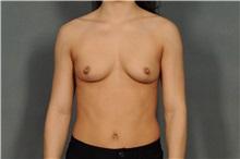 Breast Reduction After Photo by Ellen Janetzke, MD; Bloomfield Hills, MI - Case 33901