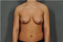 Breast Reduction Before Photo by Ellen Janetzke, MD; Bloomfield Hills, MI - Case 33901