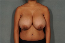Breast Reduction Before Photo by Ellen Janetzke, MD; Bloomfield Hills, MI - Case 35819