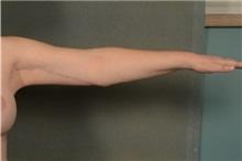 Arm Lift After Photo by Ellen Janetzke, MD; Bloomfield Hills, MI - Case 35968