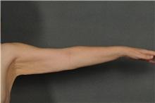 Arm Lift Before Photo by Ellen Janetzke, MD; Bloomfield Hills, MI - Case 35968