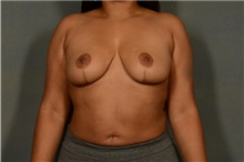 Breast Reduction After Photo by Ellen Janetzke, MD; Bloomfield Hills, MI - Case 36796