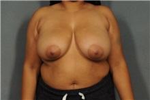 Breast Reduction Before Photo by Ellen Janetzke, MD; Bloomfield Hills, MI - Case 36796