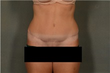 Tummy Tuck After Photo by Ellen Janetzke, MD; Bloomfield Hills, MI - Case 36999
