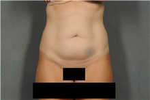 Tummy Tuck Before Photo by Ellen Janetzke, MD; Bloomfield Hills, MI - Case 36999