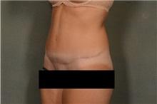 Tummy Tuck After Photo by Ellen Janetzke, MD; Bloomfield Hills, MI - Case 36999