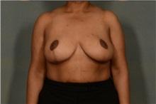 Breast Reduction After Photo by Ellen Janetzke, MD; Bloomfield Hills, MI - Case 37595