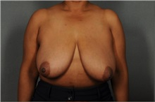 Breast Reduction Before Photo by Ellen Janetzke, MD; Bloomfield Hills, MI - Case 37595